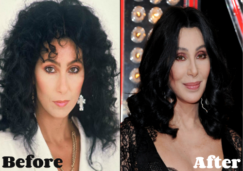 cher-plastic-surgery-before-and-after